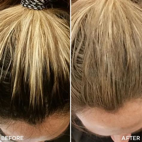 how to thicken hair roots hair toppiks new hair cover up product from toppik