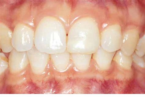 healthy gums periodontal disease