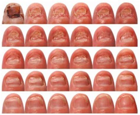 lamisil – nagelpilz effektiv bekämpfen nagelpilzinfo.com