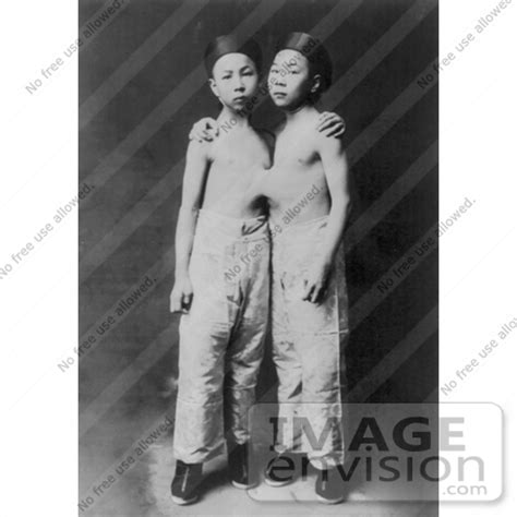 korean siamese twins | #6812 by jvpd | historical photography