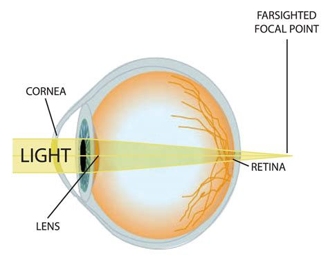 eye diagram eli5 why does squinting help with bad vision see