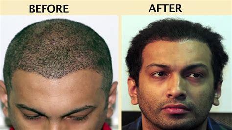 hair transplant india delhi mumbai youtube bio fue 3500 grafts anagen hair transplant mumbai