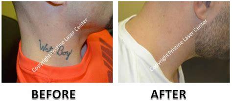 laser tattoo removal orlando pristine laser center orlando removal orlando