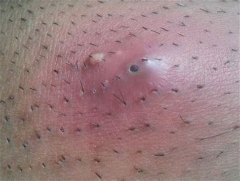 ingrown haor in inner thigh ingrown hair on thighs back between inner thighs