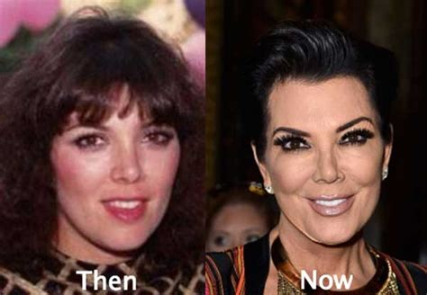 does kris jenner have a long neck for short hair kris jenner before and after plastic surgeries