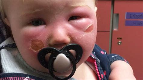banana boat sunscreen reaction mom warns about sunscreen after toddler ends up in er with