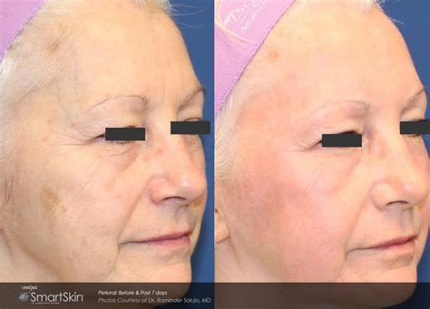 tattoo removal mobile al before and after dermatology photosadvanced dermatology