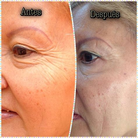 7 Wrinkle Areas And How To Treat Them by 45 Best Botox Dysport Images On Botox Fillers