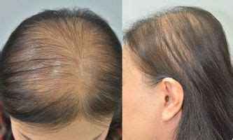 nioxin female pattern hair loss clinical cosmetic and investigational dermatology dove