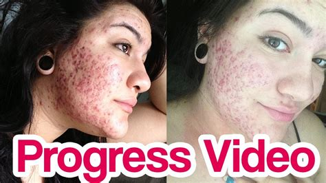 Detox After Accutane by Accutane Before After Brand Cialis Canada