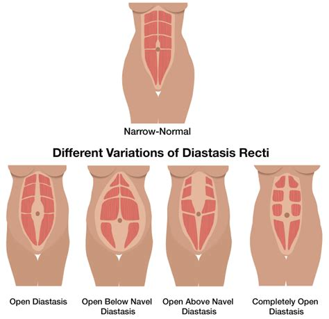 beyond fit diastasis recti part 3 diastasis recti postpartum beyond fit