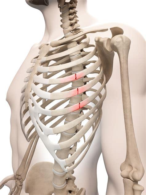 dolori alla gabbia toracica treatment for rib fractures
