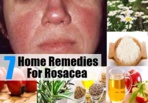 home remedies for rosacea 7 home remedies for rosacea treatments cure