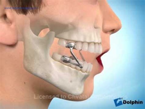 how to hide an overbite herbst device to correct overbite chvatal orthodontics
