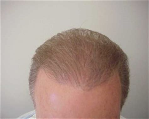 top hair surgeons in america tips for finding top hair transplant surgeons in