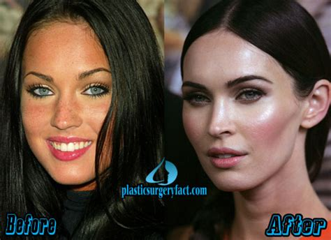 eye color surgery before and after megan fox before after plastics surgery megan fox
