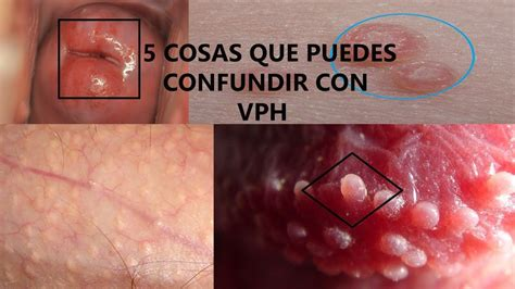 que es el papiloma humano virus del papiloma humano www imgkid com the image kid