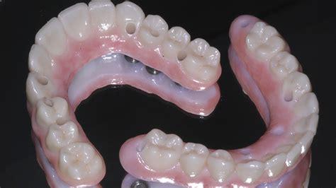 imagenes odontologicas gratis pr 243 tese dent 225 ria protocolo em acr 237 lico ou porcelana qual