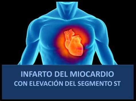 l infarto del miocardio iam con elevaci 243 n del segmento st fisiopatolog 237 a youtube