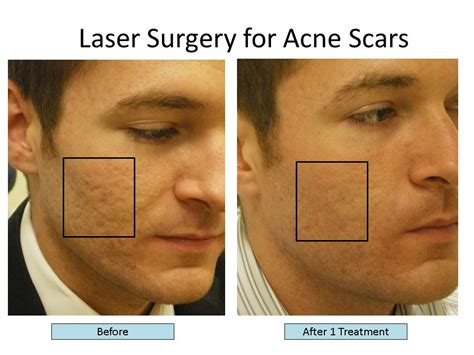 acne laser treatment the laser treatment clinic london types of acne scars treat acne scars with the best scar