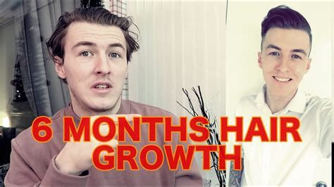 6 month hair growth men 6 months hair growth men youtube
