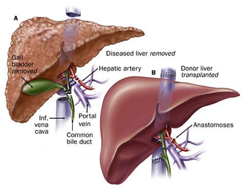 a guide to liver transplantation