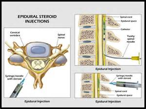 image gallery epidural injection
