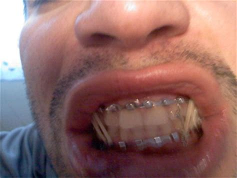 wired jaw surgery ricardo romero gets his broken jaw wired shut mma arena