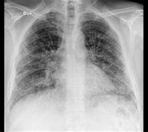 uip pattern radiographics bat s wing or butterfly pulmonary opacities refer to a