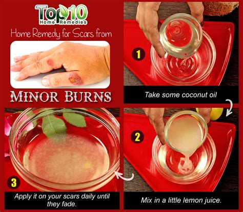 Home Remedies for Minor Burns   Top 10 Home Remedies