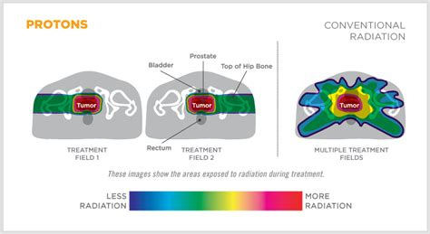 Proton Treatment Prostate Cancer Proton Therapy For Cancer Treatment
