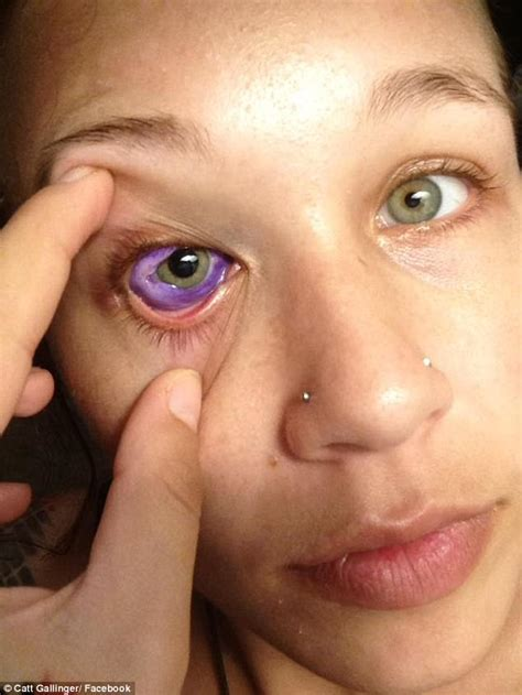 tattoo eyes gone wrong model s eye tattoo goes very wrong