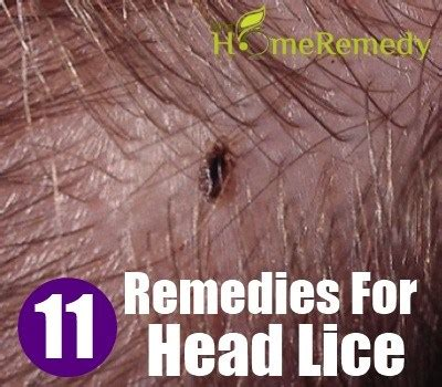 how long can lice live on bedding 11 home remedies for head lice natural treatments cure