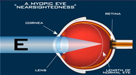 nearsightedness fisher swale nicholson eye center