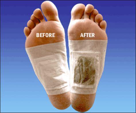 Detox Kaki by Foot Detox Foot Detox Patch Koyok Kaki Hilangkan Toksin