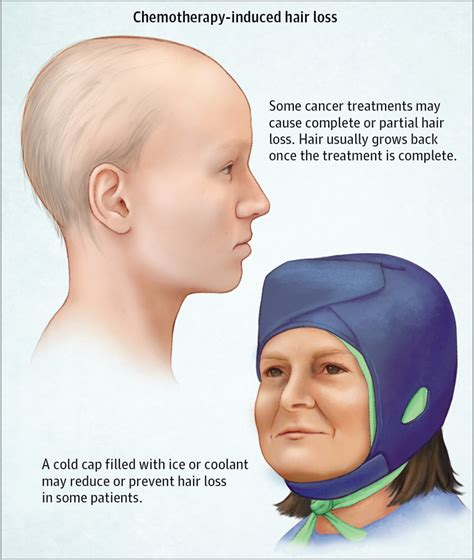 cancer chemotherapy and hair loss why it matters chemotherapy induced hair loss alopecia oncology