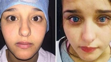 permanent eye color surgery africa s eye color surgery occurs in morocco