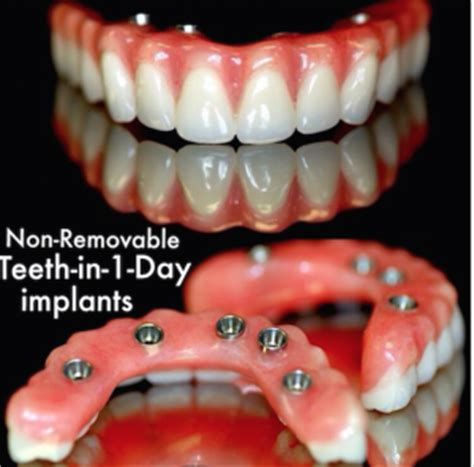 dentures in a day dentures in half here s what you can do northstar