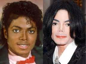 why did michael jackson change his skin color michael jackson fact vs fiction