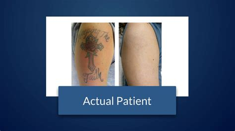 does laser tattoo removal actually work does laser removal really work west palm fl