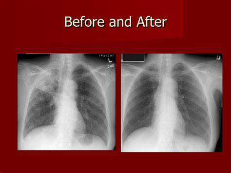 Detoxing After X Rays by Tuberculosis Presentation