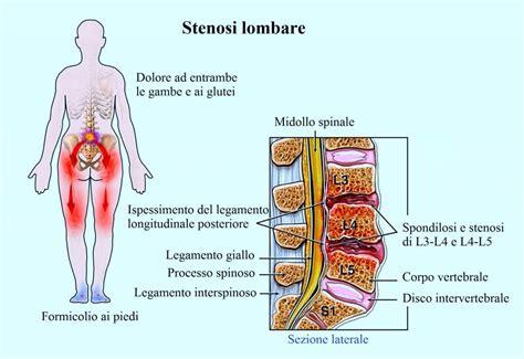 dolore coccige seduto terapia per l artrosi della colonna vertebrale cure ed