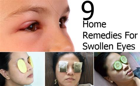 swollen eye home treatment 9 home remedies for swollen style presso