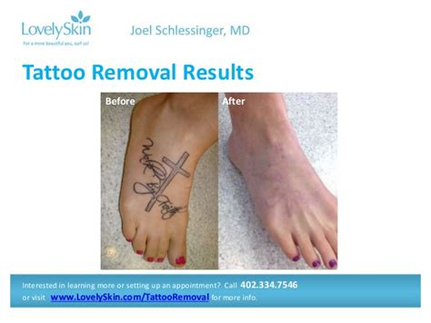 tattoo removal maryland joel schlessinger md faq removal