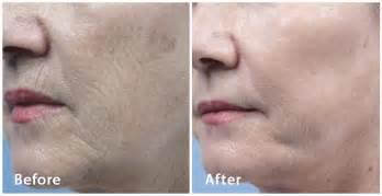 ablative laser resurfacing skin resurfacing laser lumenis fractional laser resurfacing in nashville curcio dermatology