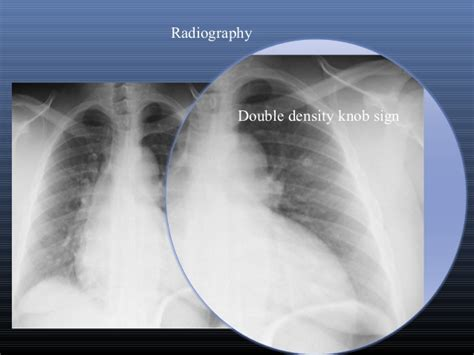 imaging of aortic dissection