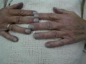 cyanotic nail beds cyanotic nail beds 28 images cyanotic nail beds photos