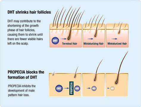 propecia finasteride hair loss medication bernstein hair loss medications london finasteride harpenden