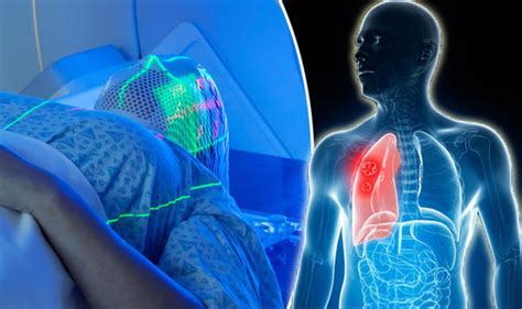 proton therapy lung cancer lung cancer targeted proton beam treatment could stop
