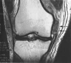 torn acl heal on its own ligament meniscus articular cartilage injuries